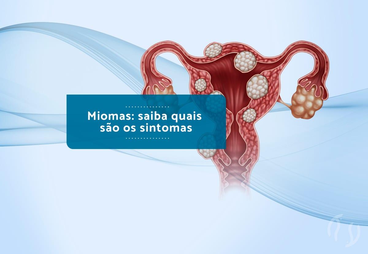 Miomas: saiba quais são os sintomas