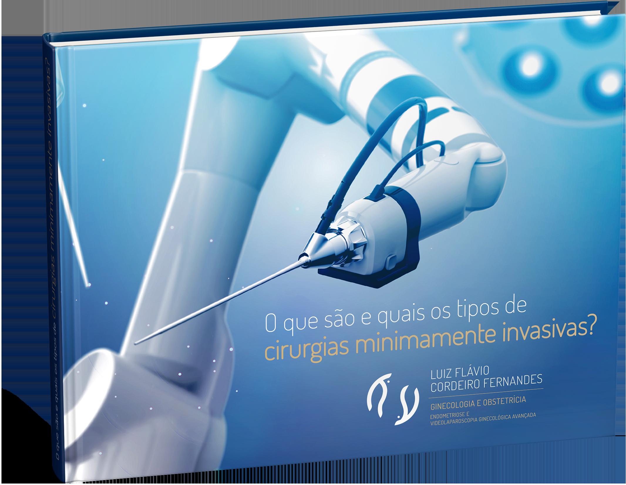 E-book O que são e quais os tipos de cirurgias minimamente invasivas?